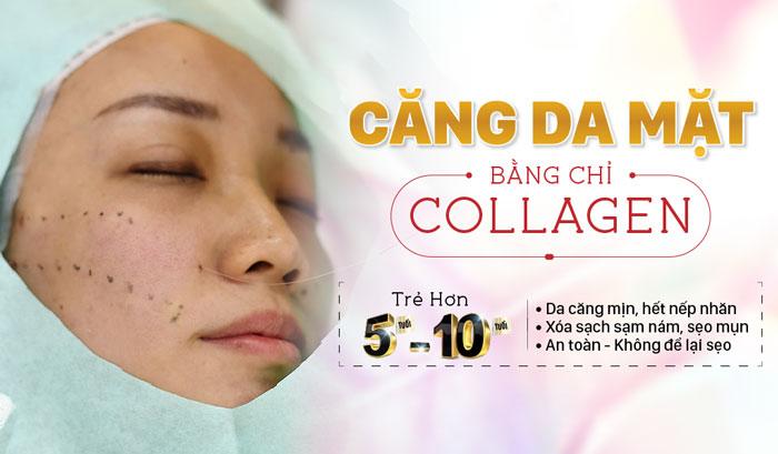Những thông tin về biện pháp nâng cơ mặt bằng chỉ collagen